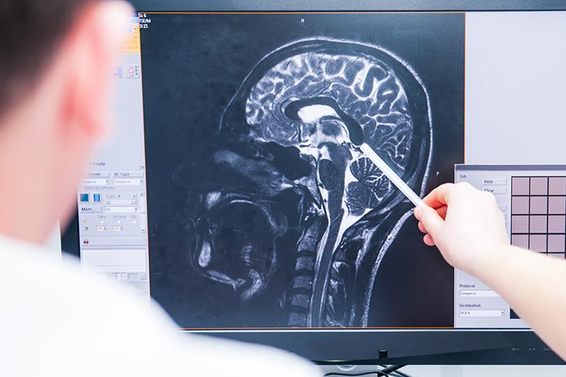 كيف تؤثر الصحة النفسية على وقوع السكتة الدماغية؟