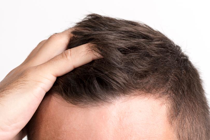 خياراتك الغذائية تنعكس على شعر رأسك