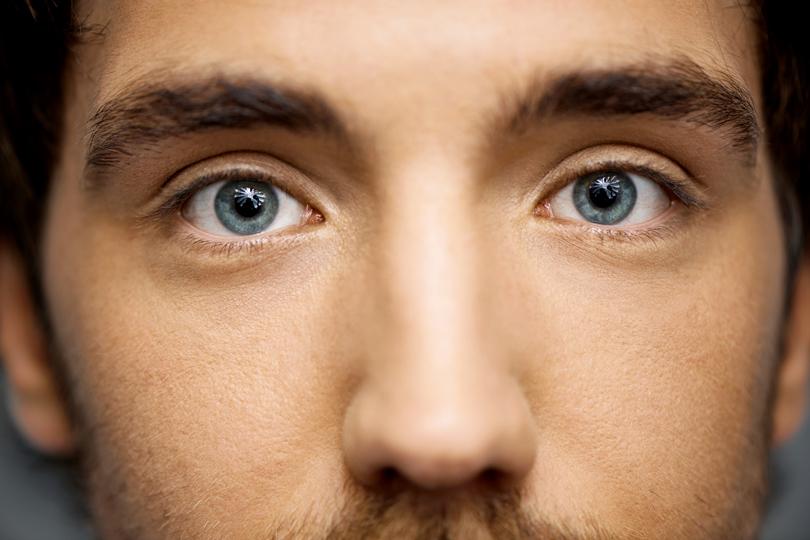 الهالات السوداء والانتفاخات حول العين.. الأسباب والعلاج