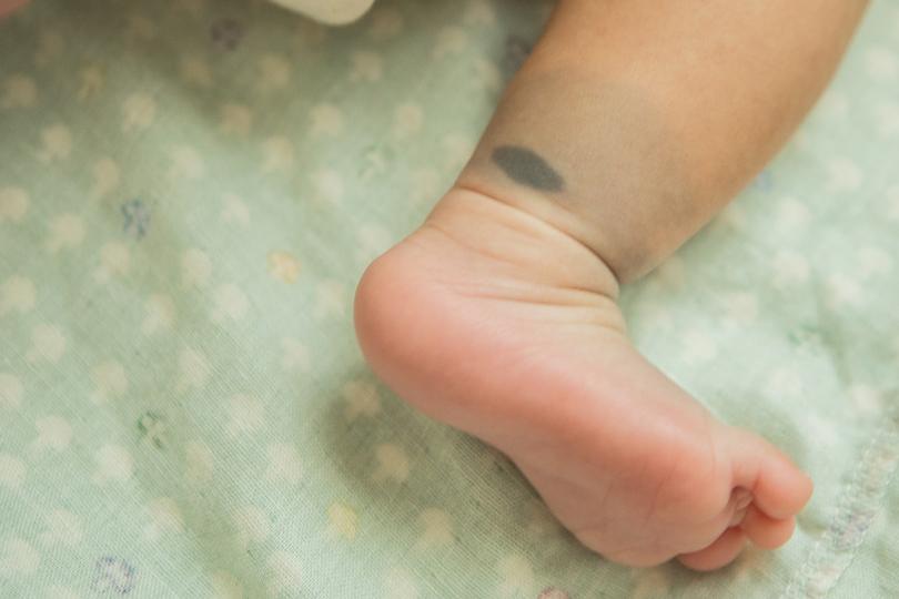ما هي البقعة المنغولية.. وهل هي خطرة على الأطفال؟