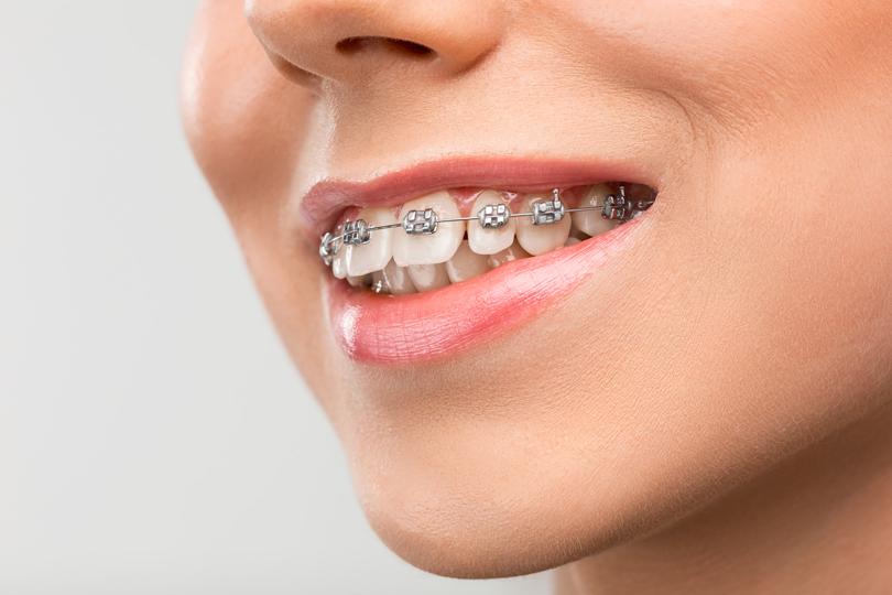 اعتقادات خاطئة عن تقويم الأسنان