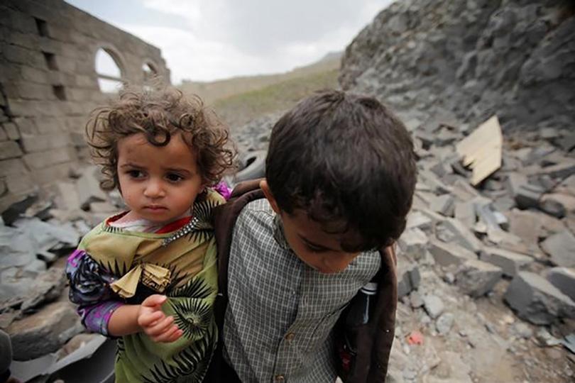 Дети Йемена больше всего страдают от войны.