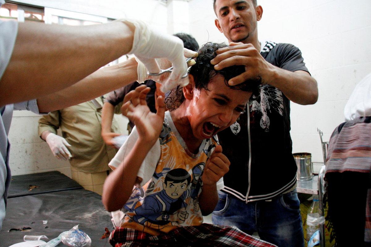 اطفال اليمن الضحية الاكثر تأثرا بالحرب السعودية الاماراتية على البلاد
