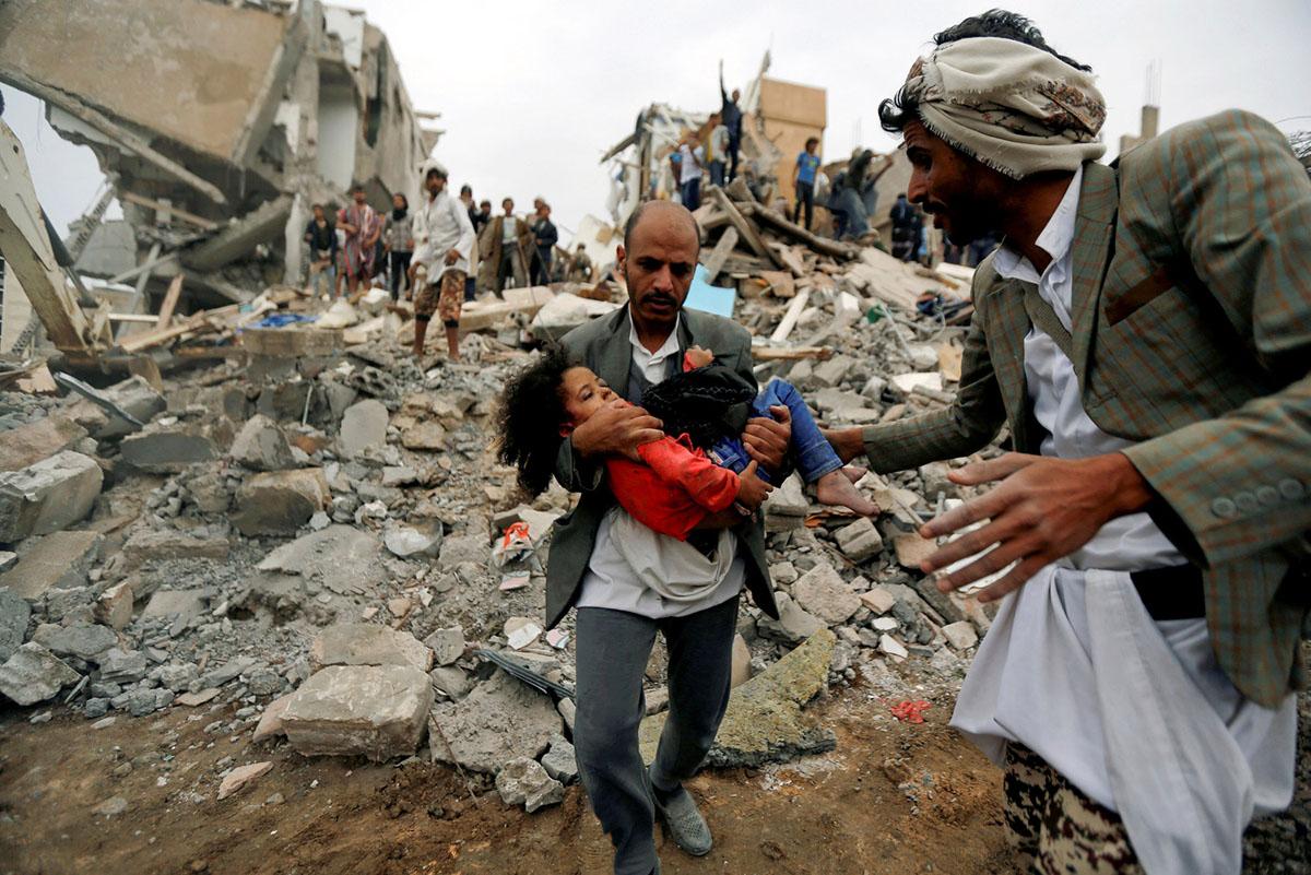 اب يحمل بنته القتيلة نتيجة القصف السعودي على الاحياء السكنية في العاصمة اليمنية ا